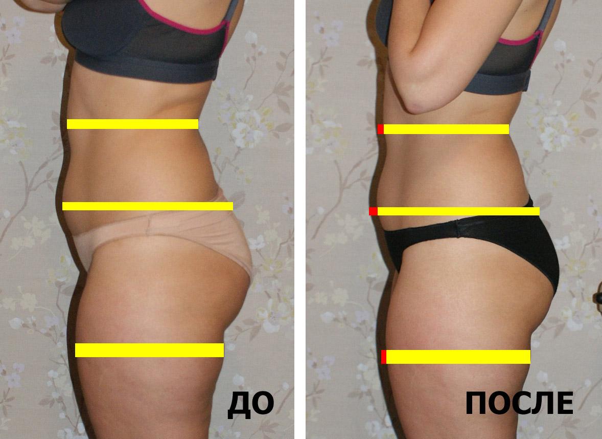 как худеть чтобы лицо не похудело