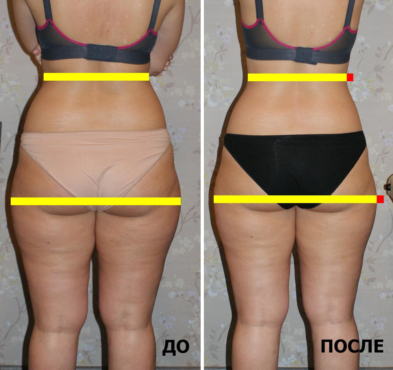 Как похудеть с лимфодренажем