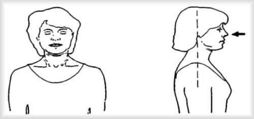 Физические упражнения направленные на улучшения положения головы